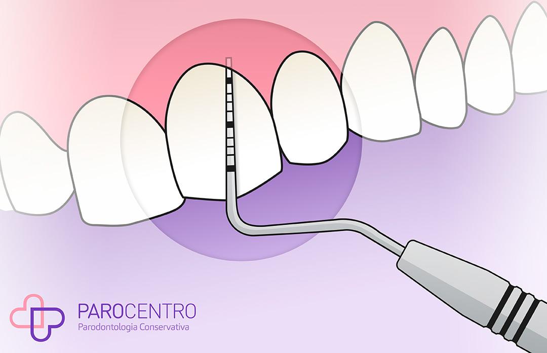 parodontite e sua diagnosi, Parocentro